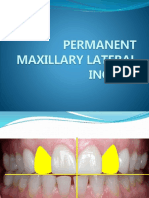 Max Lateral Incisor