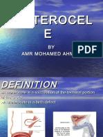 ureterocele-130919225917-phpapp02
