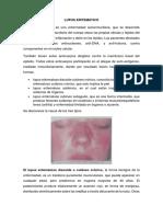 Lupus Eritematico