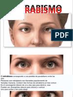 Estrabismo, Informacion Que Cura.pdf