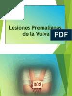 Lesiones Premalignas