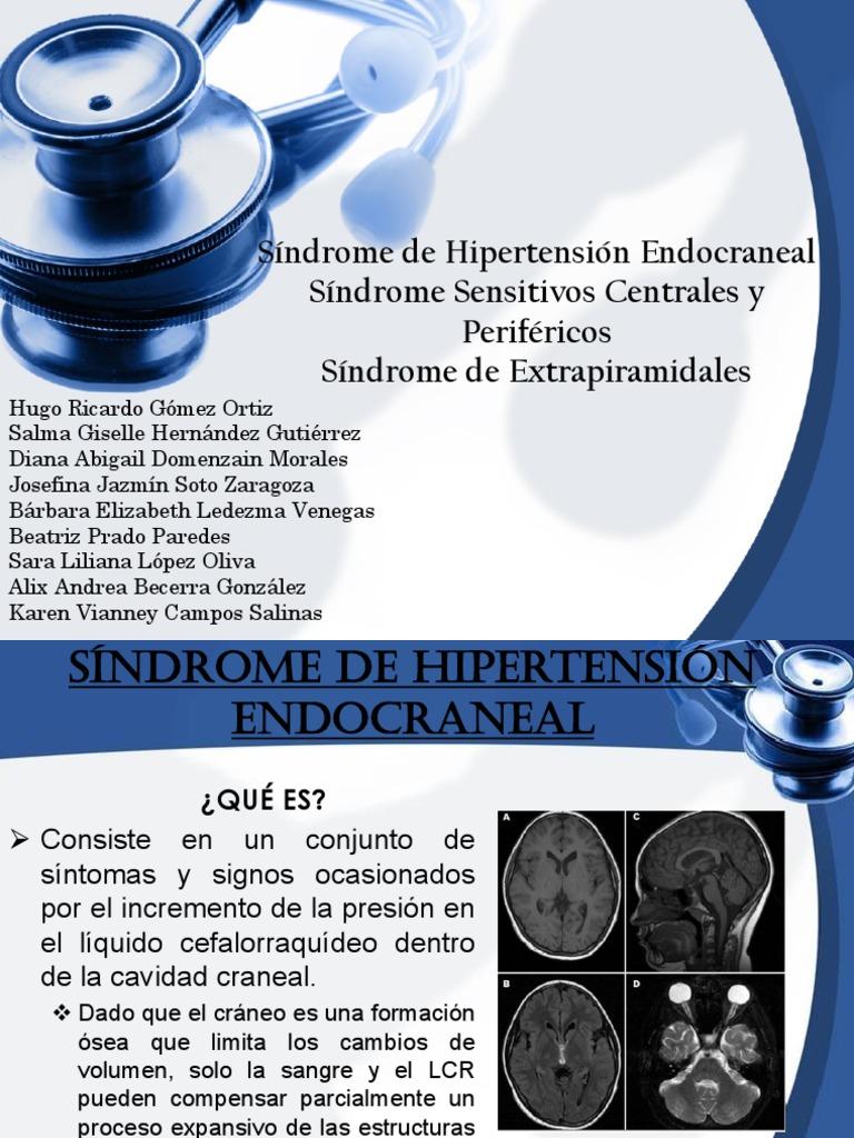 Cómo buscar la hipertensión intracraneal precisa a su producto específico servicio