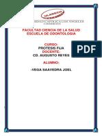 Joel Vega if II Unidad