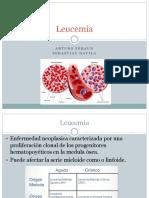 Leucemia semiologia.pptx