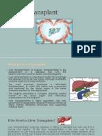 Liver Transplant Needs