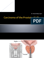 Carcinoma of the Prostate (CaP).pptx