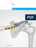 Acumed® Clavicle Plating