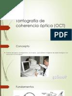 Tomografía de Coherencia Óptica (OCT)