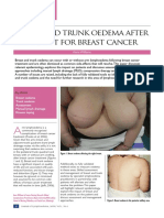 Breast and Trunk Oedema After Treatment for Breast Cancer