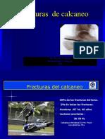 Fractura de Calcaneo Orellana