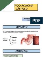 Adenocarcinoma Gástrico Final