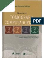 almir ignacio da nóbrega - manual de tomgrafia computadorizada