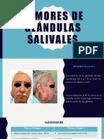 Tumores de Glándulas Salivales