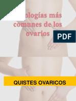 8) Patologías de Los Ovarios