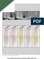 9. Neiva 2011 Jprd Preservacion Alveolar