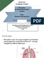 5074 Tumor Paru