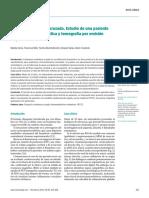 Diasquisis cerebelosa cruzada..pdf