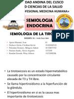 Hipertiroidismo Casi Fin