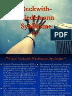 Beckwith Wiedemann Syndrome