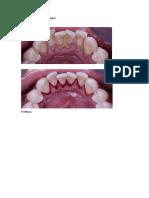 Limpieza dental.docx