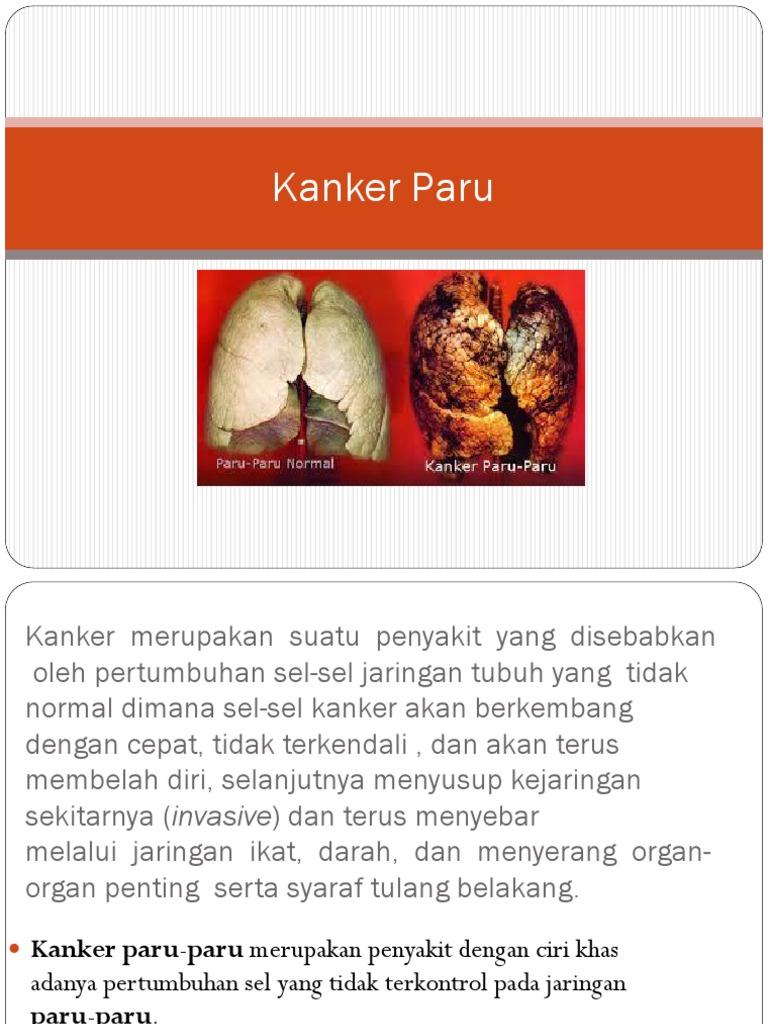PPT Kanker Paru