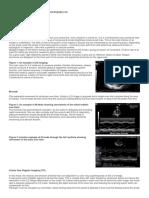 Mods of Ultrasound