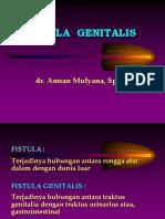 1 Fistula