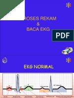 199613883 EKG Normal Btcls Ppt