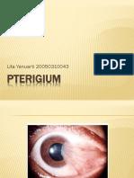 43508400-PTERIGIUM.pptx