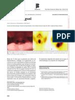Tiroides Lingual Por Gammagrafía