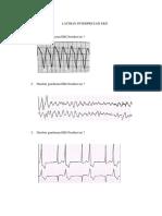 92936_latihan EKG A