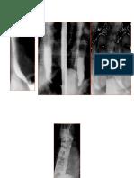 Radiografii baritate