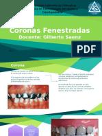 Coronas Fenestradas
