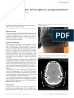 Unilateral Greater Occipital Nerve Compression Causing Scalp Numbness