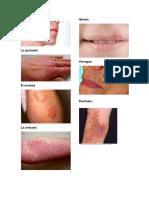 El acne.docx