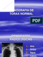 1. Rx. Normal de Torax