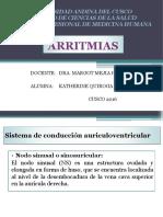 3. ARRITMIAS