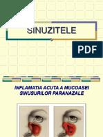 SINUZI