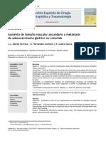 2010 Aumento de tamaño muscular secundario a metástasis de adenocarcinoma gástrico no conocido