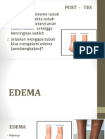Edema1