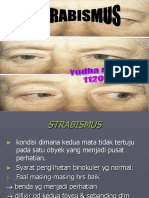 Stabismus Fix 1