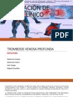 Caso Clinico Trombosis Venosa Profunda