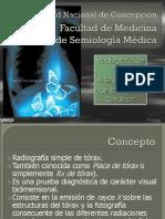 91096184 Interpretacion Rx Torax Silueta Cardiaca V2