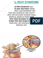 Cervical Root Syndrome Ppt
