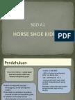 PPT Horseshoe Kidney