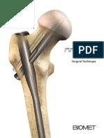 AFFIXUS Hip Fracture Nail Surgical Technique