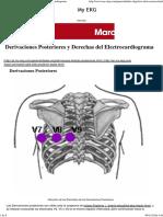 Derivaciones Derechas y Posteriores Del Electrocardiograma