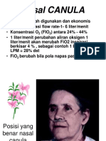 Nasal Canula[1]