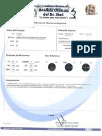 ELECTROCARDIOGRAMA ANALISIS.pdf