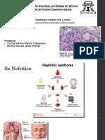 Glomerulonefritis proliferativa difusa aguda.pptx